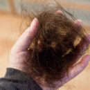 Post-Partum Hair Loss